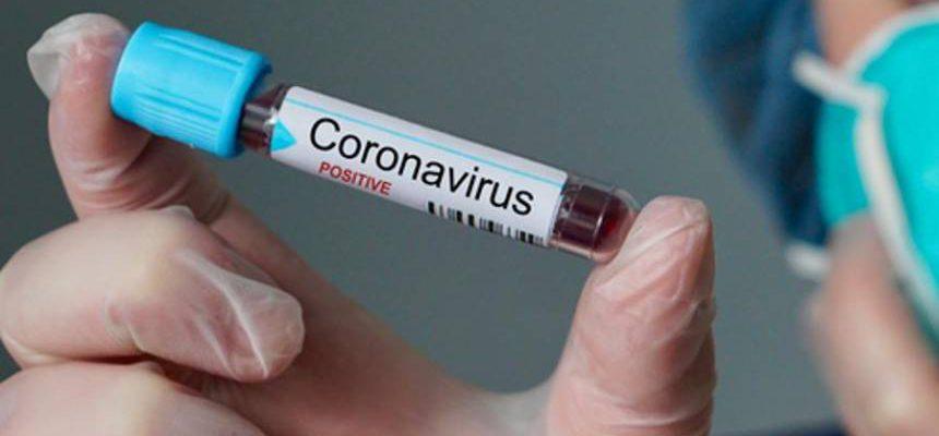 20200310113144_860_645_-_laboratorio_busca_voluntarios_para_testar_vacina_de_coronavirus